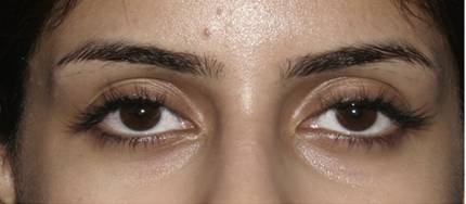 treatment result of Blood vessel congestion around the eyes