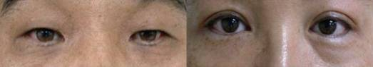 photo of eye bags caused by pigmentation