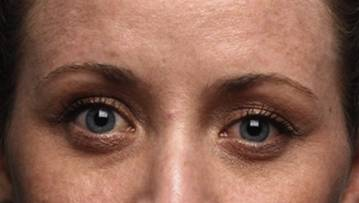 woman with bulky lower eyelid