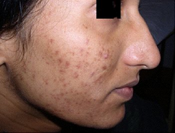 Too Much Of Q-Switched Lasers Can Kill Your Skin - Dr Chua