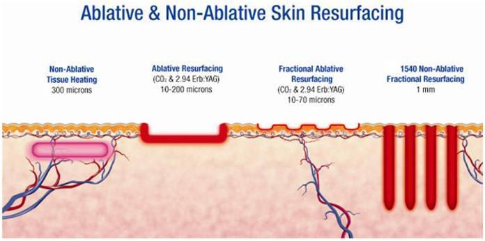ablative and non-ablative skin resurfacing