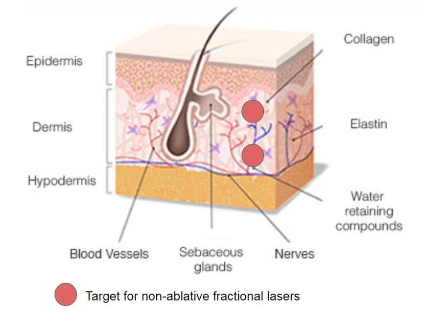 target for non-ablative lase