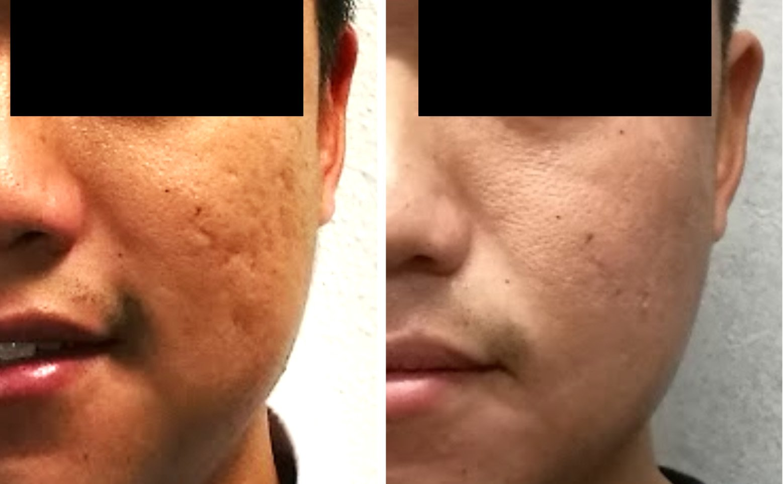 Acne Scars CAN Be 100% Cured - Dr Chua Cheng Yu