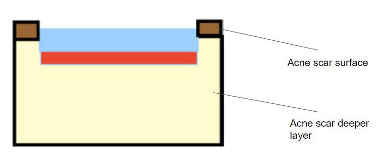 deep peel acne scar diagrama