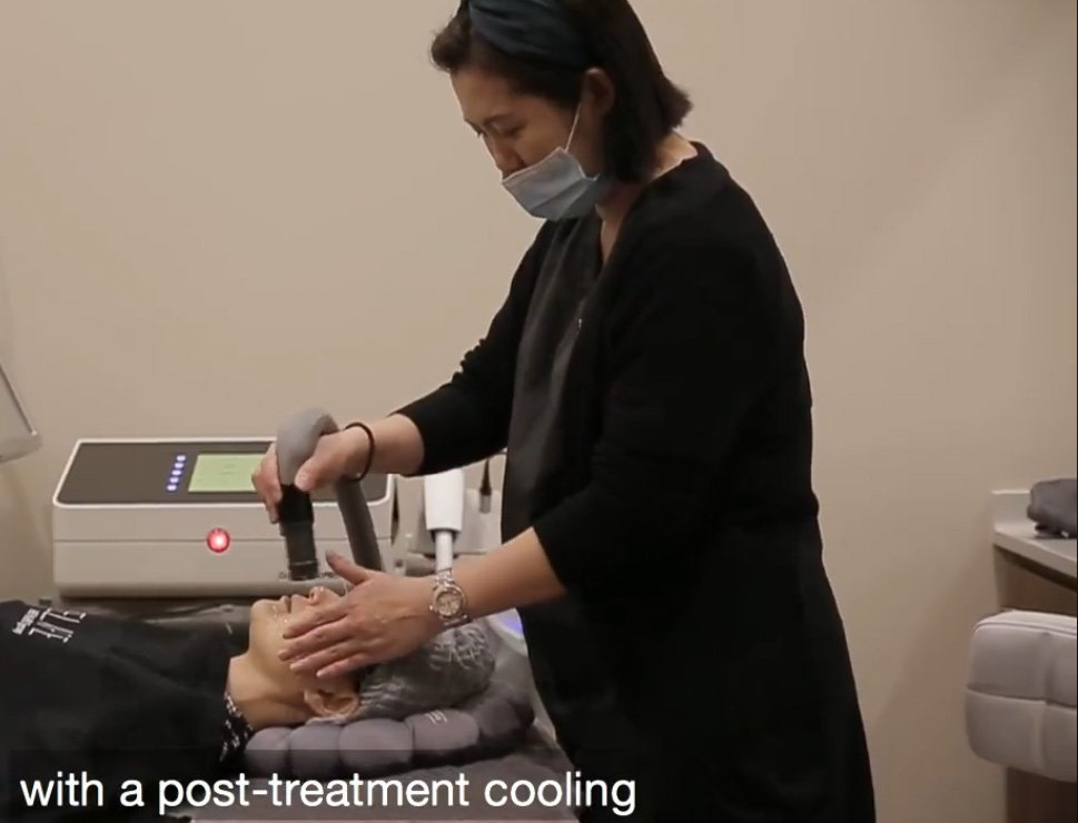 laser skin treatment cooling