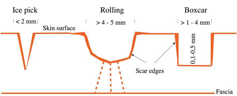rf microneedling