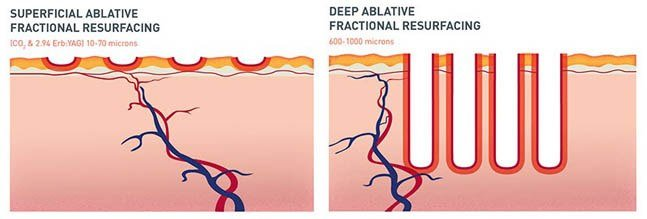 superficial and deep ablative fractional resurfacing diagram