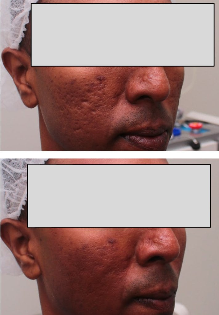 acne scar treatment before after