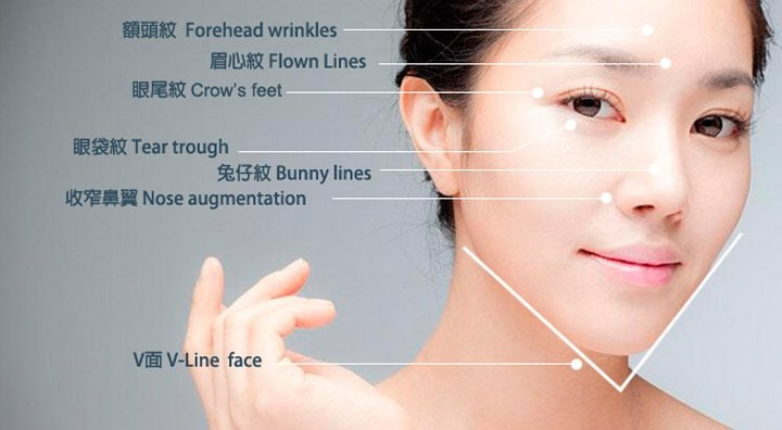 areas on the face where botox can be used